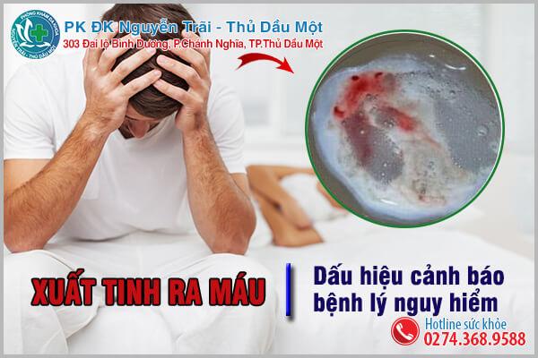 Xuất tinh ra máu dấu hiệu cảnh báo nam giới mắc phải các bệnh lý nguy hiểm