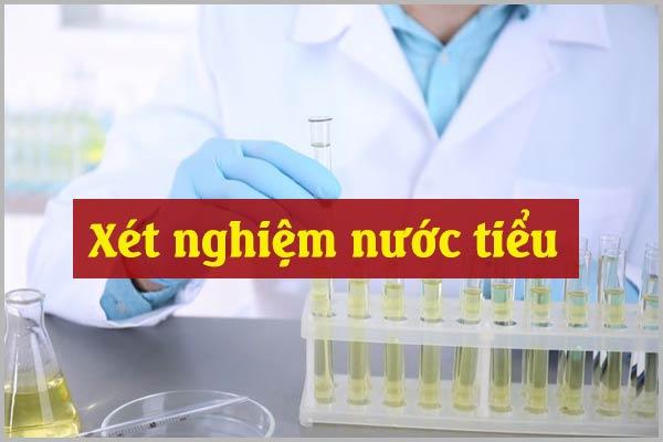 Xét nghiệm nước tiểu chính xác ở đâu để chuẩn đoán ra bệnh?