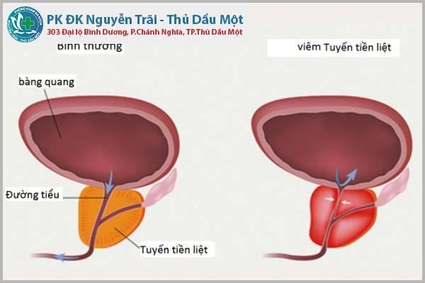 Nhận biết triệu chứng viêm đường tiết niệu ở nam giới