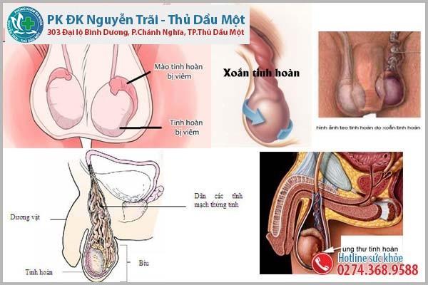 Những bệnh ở tinh hoàn nam giới cần biết