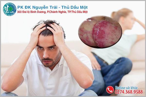 Dấu hiệu viêm bao quy đầu cảnh báo sức khỏe nam giới