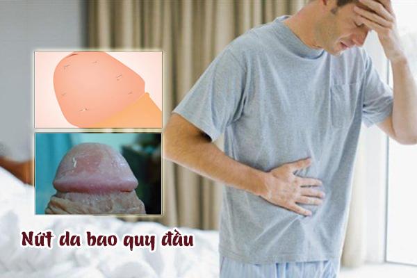 Nứt da quy đầu có sao không và hướng xử lý an toàn
