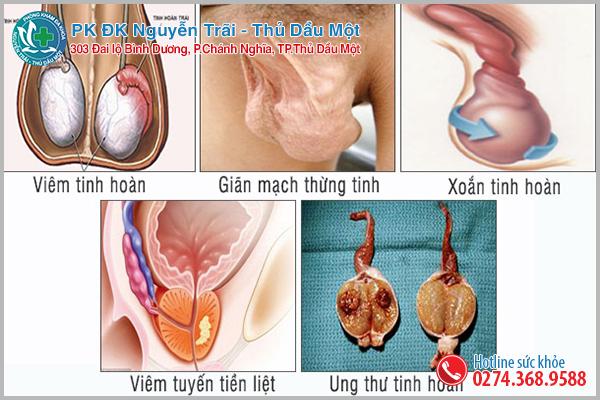 Biến chứng nguy hiểm khi tinh hoàn bé 1 bên lớn 1 bên cần lưu ý
