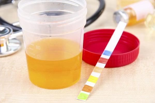 Phương pháp chẩn đoán và điều trị bệnh viêm đường tiết niệu